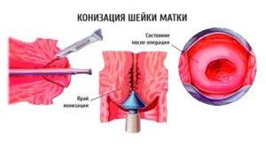 Конизация шейки матки петельным методом