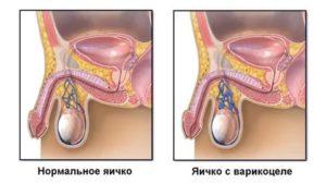 Боль в правом яичке при нажатии