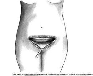 Контрацепция после кесарева сечения
