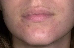 Пятна после периорального дерматита