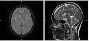 Расшифровка МРТ, Расширение паравазальных пространств
