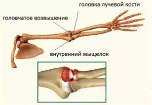 Закрытый перелом головчатого возвышения правой плечевой кисти со смещением