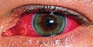 Повреждена слизистая глаза