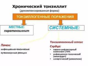 Хронический декомпенсированный тонзиллит