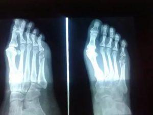 Стоит ли делать операцию 5 плюсневой кости