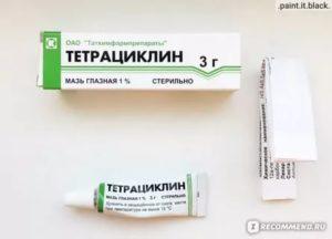 Прием тетрациклина во время беременности