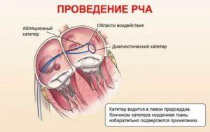 Экстрасистолия после РЧА сердца