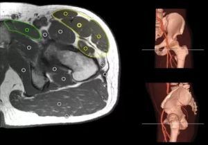Защемление нерва, МРТ