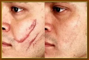 Что сделать чтобы после царапины на лице не осталось шрама