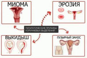 Коричневые выделения и температура после незащищенного полового акта