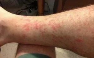 Зуд на ногах после давки винограда