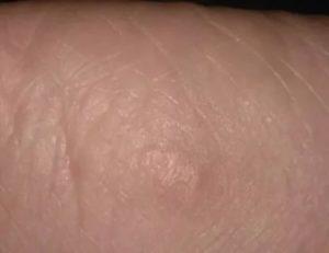 Морщинистые участки на коже