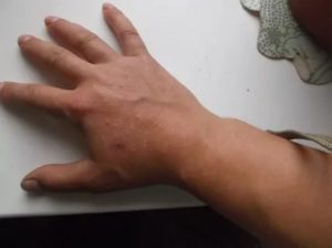 Появились пупырышки на кисти руки