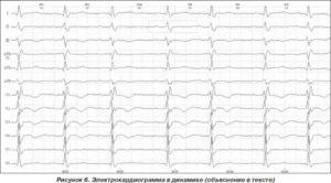ЭКГ. Нарушение процессов реполяризации в миокарде ЛЖ