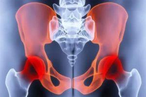 Болят кости таза во время месячных