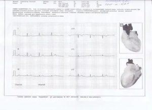 Расшифровка заключения кардиолога