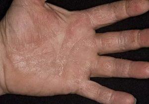 Коричневые чешуйки на руках