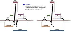 Депрессия сегмента ST, признак феномена CLC и ЭС