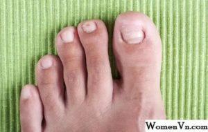 В больших пальцах ног, ногти растут вверх, бугром
