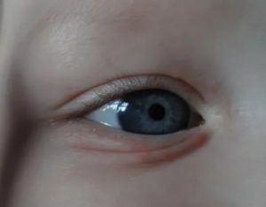 Появился прыщик в глазу у ребенка