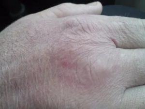 Красное пятно на кисти руки