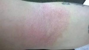 Красные пятна на внутренней стороне руки и локте
