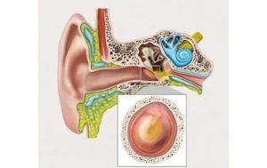 Лечение отита уха, нет барабанной перепонки