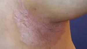 Пятна на лобке, зуд и шелушение
