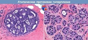 Пролиферация апокриновых клеток