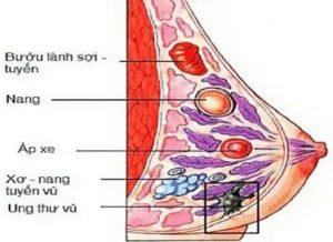 Уплотнение в верхней части груди