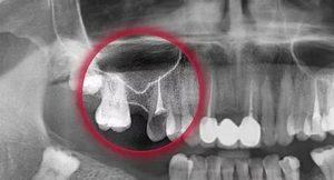 Зуб и гайморит. Мне страшно