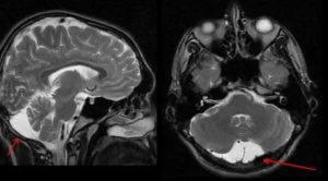 Киста. Нормоперфузия головного мозга