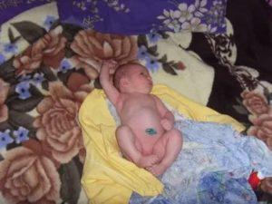 Увеличена печень у ребенка в 1 месяц