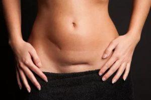 Можно ли беременеть через 6 месяцев после кесарева сечения?