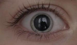 Непроизвольное расширение зрачков после капель для глаз