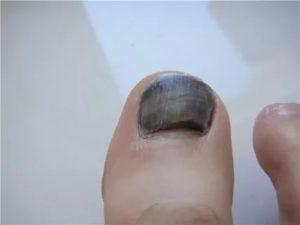 Почернел палец на руке в чем может быть причина
