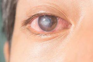 Воспаление после линзы