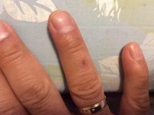 Красное шелушащееся пятном на указательном пальце