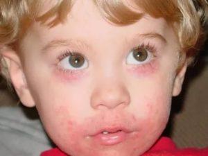 Стрептодермия в области глаза
