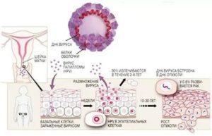 ВПЧ и белые выделения