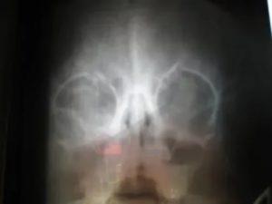Гайморит на рентгене у ребенка 6 лет