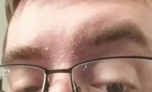 Пятна на лице и под бровями, шелушение