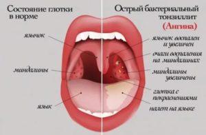 Увеличены миндалины, красное горло без температуры