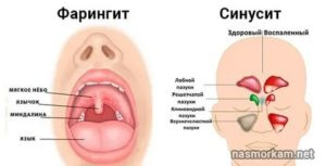 Болит горло и ухо с правой стороны