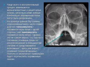 Хронический гемисинусит