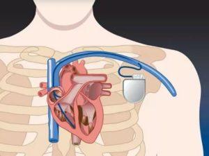 Можно ли делать рентген ладони, если установлен кардиостимулятор?