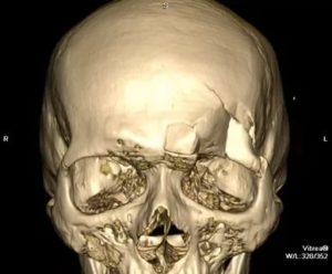 Консолидированный перелом костей носа, перелом передней стенки лобных пазух
