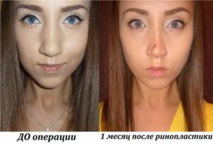 Не дышит нос после турбинопластики