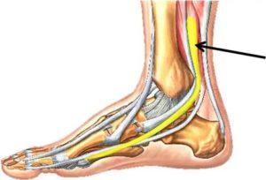 Посттравматический тендинит сухожилий, длинных и коротких малоберцовых мышц