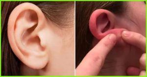 Коросты на мочке уха